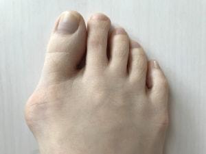 足の指でパーが出来ないと鼻緒が食い込んで痛みます
