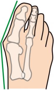 ハイヒールだけが外反母趾の原因ではありません!